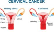 Every eight minutes, one woman in India succumbs to cervical cancer