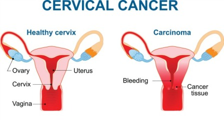 Every eight minutes one woman in india succumbs to cervical cancer cervical cancer ccuart Choice Image